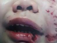 Hàng loạt trẻ bị chó cắn nát mặt, đứt khí quản, tử vong: Báo động đỏ nhiều nhà nuôi chó