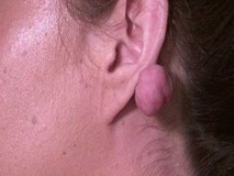 Mang 2 cục u khổng lồ sau khi xỏ lỗ tai