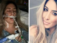 Dùng băng vệ sinh sai cách, thiếu nữ 16 tuổi bị sốc độc rồi tử vong
