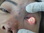 Một nữ sinh có nguy cơ mù mắt vì tiêm filler-2