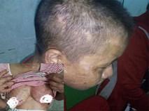 Vụ cô gái nghi bị tra tấn dã man: Sau nửa tháng đánh đập, nạn nhân phát hiện bị sẩy thai