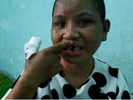 Vụ cô gái bị tra tấn ở Gia Lai: 'Nhìn em gái tôi không cầm nổi nước mắt'