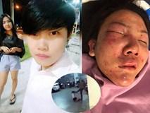"""Cô gái bị người yêu đồng tính 7 năm đánh đập dã man lên tiếng: """"Vết khâu vẫn còn đau, cơ thể đau, lòng cũng đau"""""""