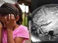 Bé 8 tuổi động kinh do nhiễm 100 trứng sán dây trong não vì có 2 thói quen tai hại