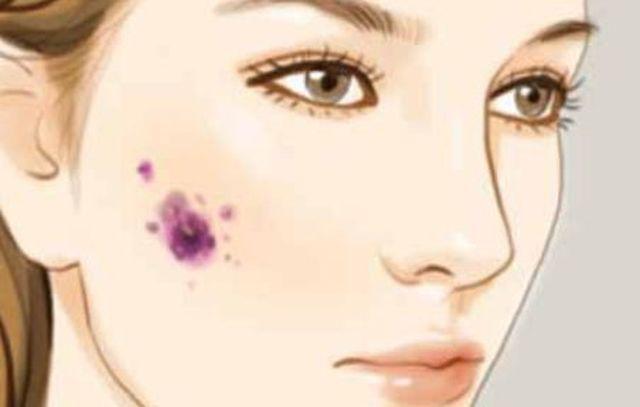 Cô gái 26 tuổi bị ung thư sau khi tẩy nốt ruồi, 10 kiểu nốt ruồi cần đi khám gấp-1