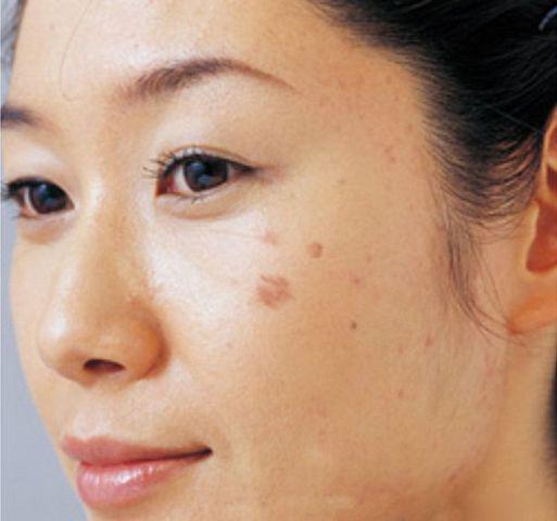 Cô gái 26 tuổi bị ung thư sau khi tẩy nốt ruồi, 10 kiểu nốt ruồi cần đi khám gấp-5