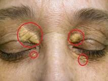 10 dấu hiệu lạ trên da