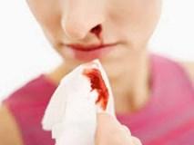 Người phụ nữ bị chảy máu cam, đi khám giật mình bác sĩ chẩn đoán mắc bệnh phụ khoa