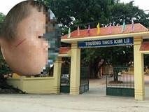 Học sinh ở Hà Nội bị thầy giáo lên gối, tát xước mặt