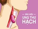 Cẩn thận nếu thấy cục hạch sau tai vì nó có thể là dấu hiệu của nhiều bệnh nguy hiểm, bao gồm cả ung thư-5