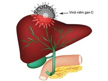 Mắc căn bệnh lây nhiễm này, người bệnh có nguy cơ ung thư cao gấp 12 lần bình thường
