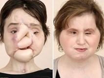 Cô gái 'được sống lại lần nữa' sau cuộc đại phẫu cấy ghép mặt dài 31 tiếng