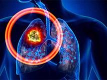 Xu hướng người trẻ tuổi mắc ung thư phổi đang tăng nhanh: Làm sao để phát hiện sớm nhất?