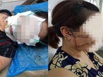 Người phụ nữ tố bị chồng ghen tuông cắt đứt 3 gân chân, rạch mặt