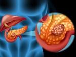 Từ chẩn đoán ung thư tuyến tụy đến tử vong chỉ trong vòng 1 năm: Hãy đi khám gấp nếu cơ thể có 4 điểm lạ này-6