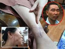 Người chồng rạch mặt, cắt gân chân của vợ trần tình: 'Chỉ vì quá yêu vợ nên mới làm vậy'
