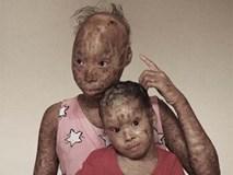 Nghẹn ngào câu nói của cậu bé 4 tuổi: 'Mẹ ơi! Các bạn gọi con là người ngoài hành tinh'