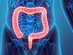 Có thể bạn đã mắc bệnh ung thư trực tràng nếu gặp phải một trong 5 triệu chứng bất thường sau-6