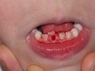 """Cậu bé 7 tuổi bị """"hàm răng đôi"""", cảnh báo do thói quen chiều con khi ăn của cha mẹ"""