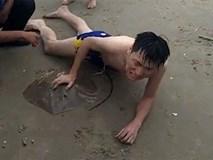 Bị cá đuối gai độc cắm vào 'của quý' khi đi tắm biển