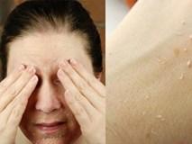 10 năm sau làn da vẫn mềm mịn, không nếp nhăn nếu áp dụng ngay cách chăm sóc này