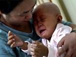 Ung thư máu: Những dấu hiệu nhận biết sớm và cảnh báo nhóm người có nguy cơ mắc bệnh cao-3