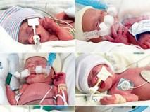 Hy hữu ca sinh mổ với đội ngũ y bác sĩ lên tới 35 người để giúp… 6 em bé chào đời