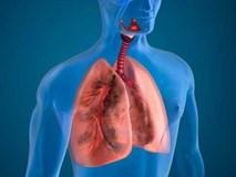 10 cách giúp thanh lọc phổi tự nhiên hiệu quả