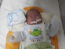 Kỳ diệu bé sinh non 27 tuần tuổi 0.8kg, phổi chưa phát triển hoàn chỉnh xuất viện nặng 3kg