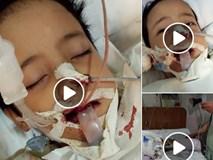 Con trai suýt mất mạng chỉ vì không được dạy đánh răng đúng cách, bà mẹ khẩn thiết kêu gọi phụ huynh chú ý đến việc tưởng đơn giản này