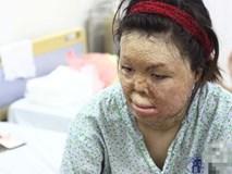 Người vợ Hà Nội bị chồng thiêu hôm mùng 2 Tết, chỉ có 1% cơ hội sống sót đã