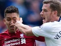 Móc mắt đối phương man rợ, trung vệ Tottenham đối diện nguy cơ mất cả mùa giải