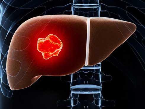 5 yếu tố lớn nhất có nhiều khả năng gây ung thư gan: Dù bạn ở lứa tuổi nào cũng nên tránh-1