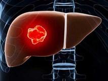 5 yếu tố lớn nhất có nhiều khả năng gây ung thư gan: Dù bạn ở lứa tuổi nào cũng nên tránh
