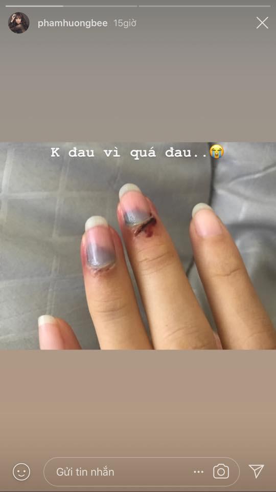 Phạm Hương bất ngờ đăng tải hình ảnh các ngón tay bị bầm dập khiến fan sốt xình xịch vì lo lắng-2