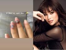 Phạm Hương bất ngờ đăng tải hình ảnh các ngón tay bị bầm dập khiến fan