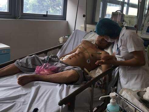 Chuyên gia BV Bạch Mai cảnh báo: 3 thủ phạm nguy hiểm gây bệnh chết người trong gang tấc-2