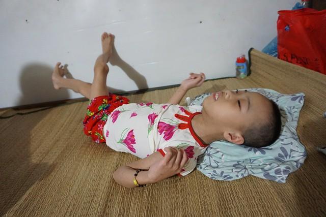 Vụ cháy kinh hoàng gần Bệnh viện Nhi Trung ương: Nghị lực phi thường của người mẹ già cứu đứa con nuôi tật nguyền-2