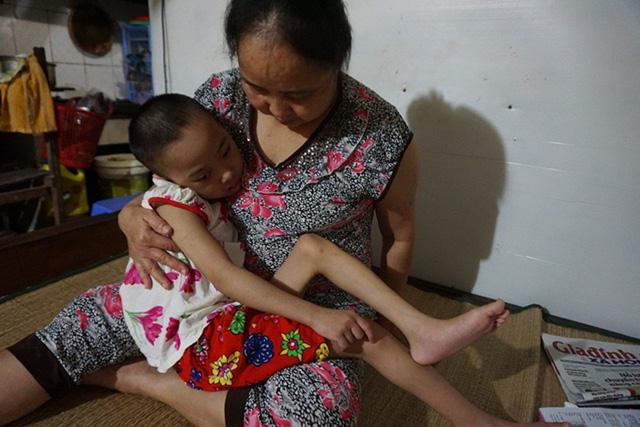 Vụ cháy kinh hoàng gần Bệnh viện Nhi Trung ương: Nghị lực phi thường của người mẹ già cứu đứa con nuôi tật nguyền-1