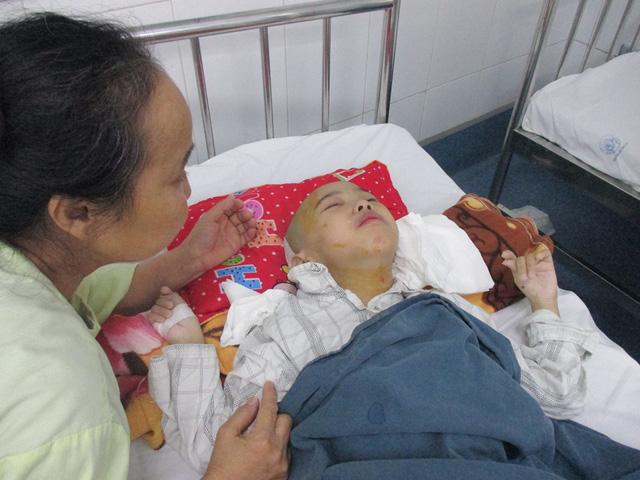 Vụ cháy kinh hoàng gần Bệnh viện Nhi Trung ương: Nghị lực phi thường của người mẹ già cứu đứa con nuôi tật nguyền-3