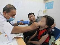 Gắp ốc vít hoen gỉ trong mũi bé trai 3 tuổi