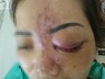 Chủ cơ sở thẩm mỹ ở TP.HCM gom hết đồ nghề bỏ trốn sau khi tiêm filler khiến nữ sinh viên 20 tuổi biến chứng-4
