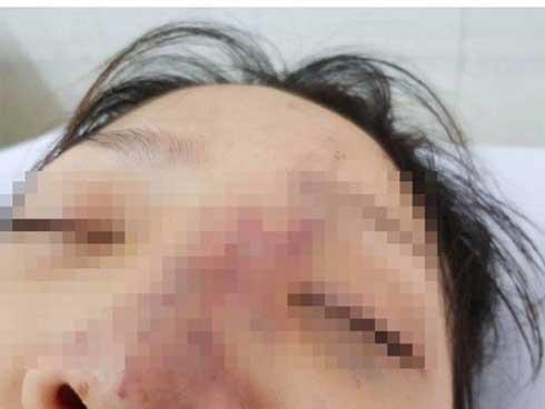 Một nữ sinh có nguy cơ mù mắt vì tiêm filler-1