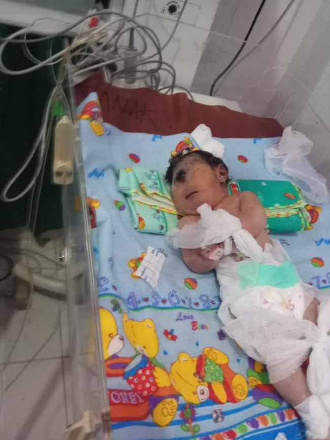 Em bé sinh ra có 1 mắt, chỉ sống được 7 giờ, nghe bác sĩ giải thích nguyên nhân mẹ mới giật mình-2