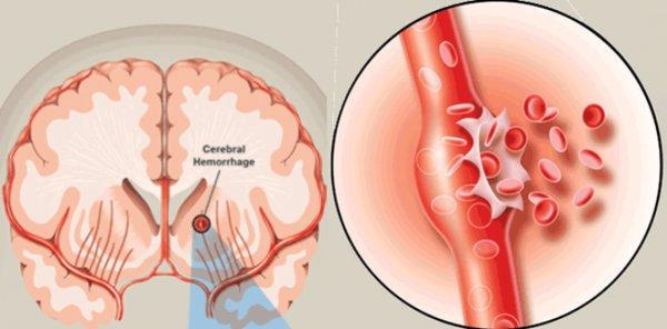 Thanh niên trẻ xuất huyết não, sống thực vật, bác sĩ chỉ dấu hiệu cảnh báo bệnh-2
