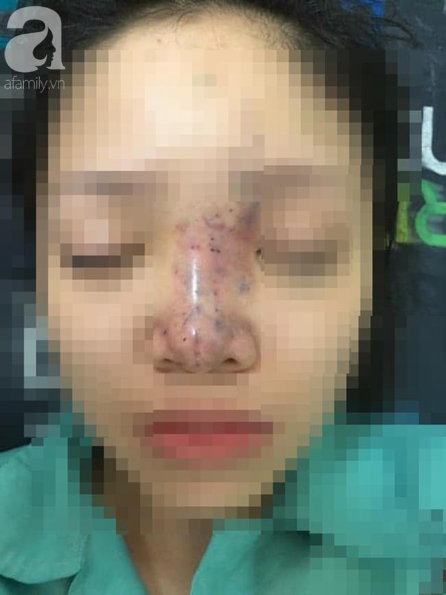 Chủ cơ sở thẩm mỹ ở TP.HCM gom hết đồ nghề bỏ trốn sau khi tiêm filler khiến nữ sinh viên 20 tuổi biến chứng-3