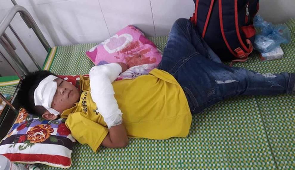 Bé trai 7 tuổi nát 2 bàn tay vì điện thoại phát nổ lúc vừa chơi vừa sạc-2