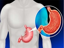 Nhiều người phát hiện ung thư dạ dày ở giai đoạn cuối: Hãy làm 2 điều để kéo dài sự sống