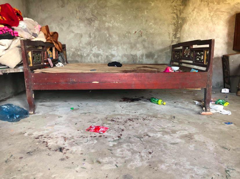 Hoàn cảnh đáng thương của bé gái tử vong với vết cứa trên cổ nghi bị bố sát hại-2