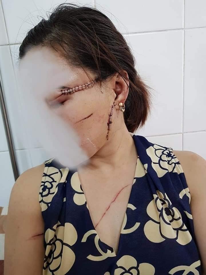 Thông tin mới nhất vụ chồng dùng dao rạch mặt, cắt gân chân vợ hờ ở Bắc Giang-1